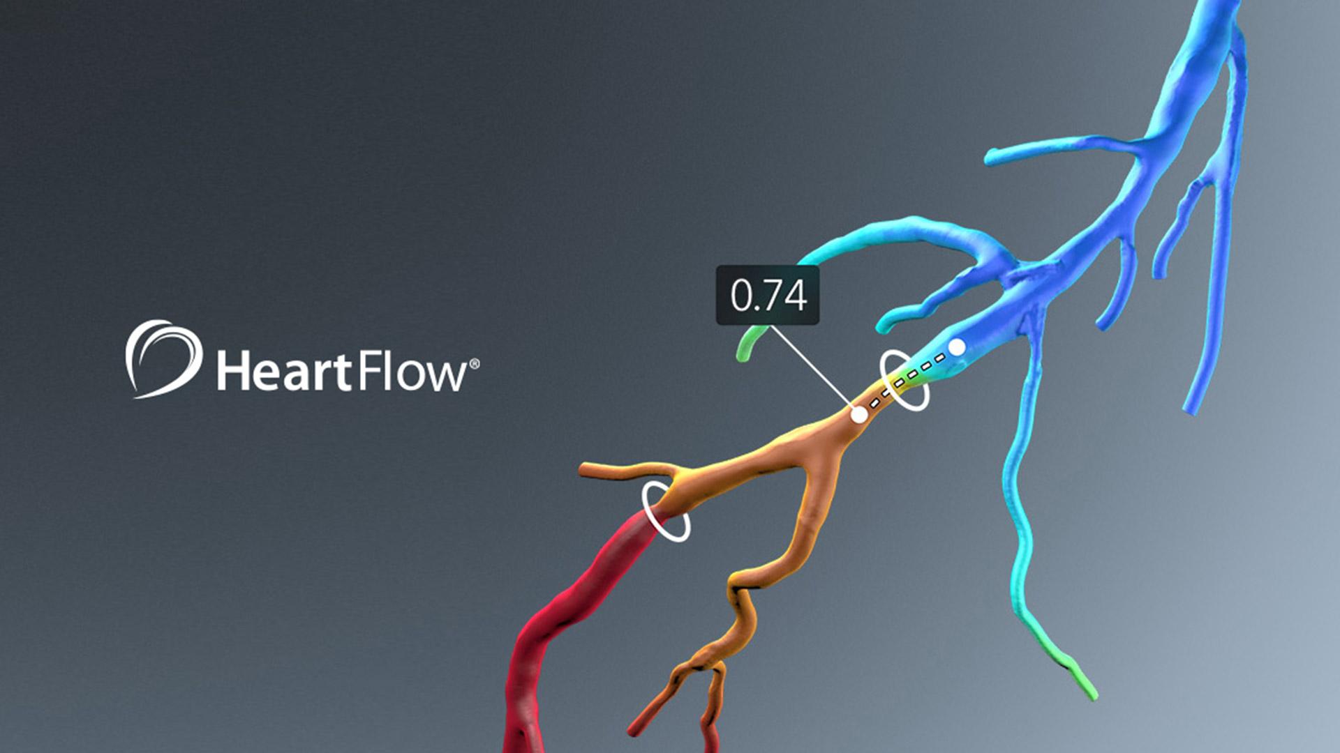 HeartFlow-Intro